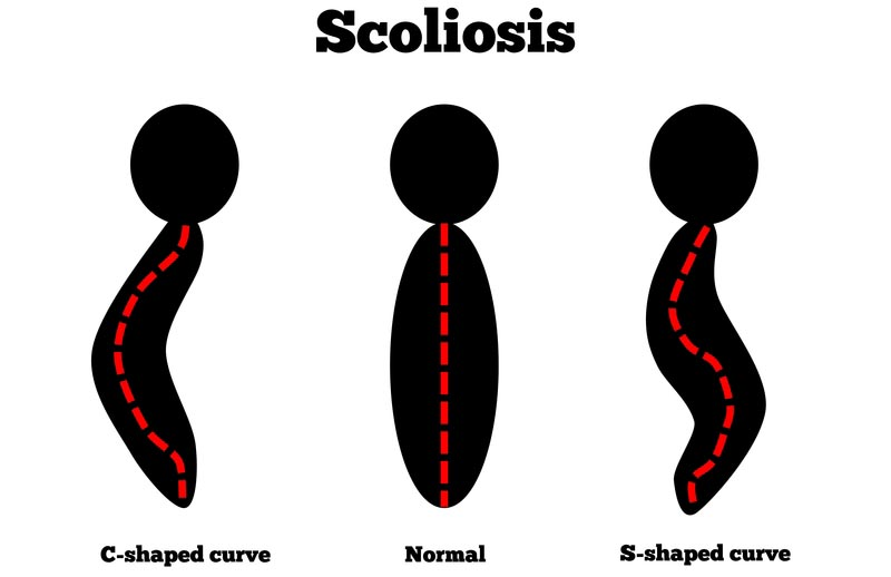 Westfield, WI scoliosis treatment